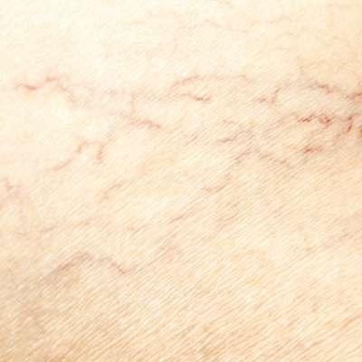 varicose veins on the skin
