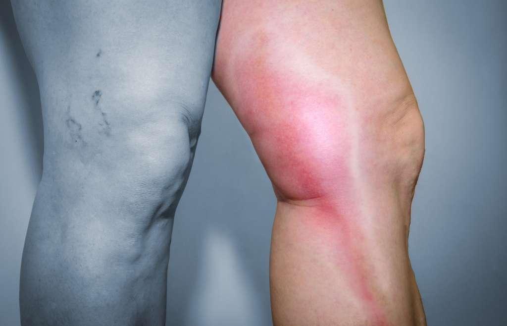 Flebit, Tromboflebit (damar iltihabı) Tedavileri
