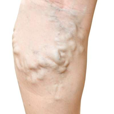 Varicose veins closeup on legs isolate on white background.