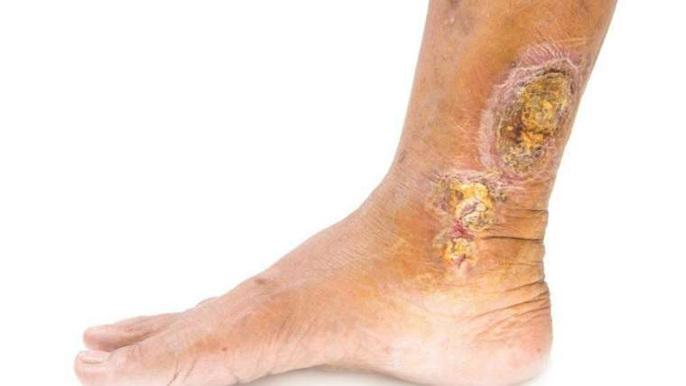 Treatments for Venous Ulcers